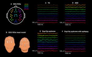 EEG głowy Wrocław